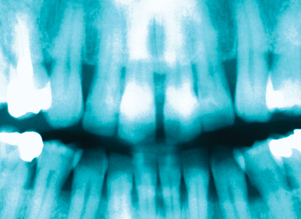 Dental X-Rays Safety and FAQs - Ladera Ranch Dentistry